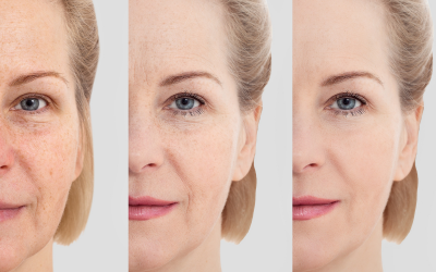 A Guide to Non-Surgical Anti-Aging Treatments