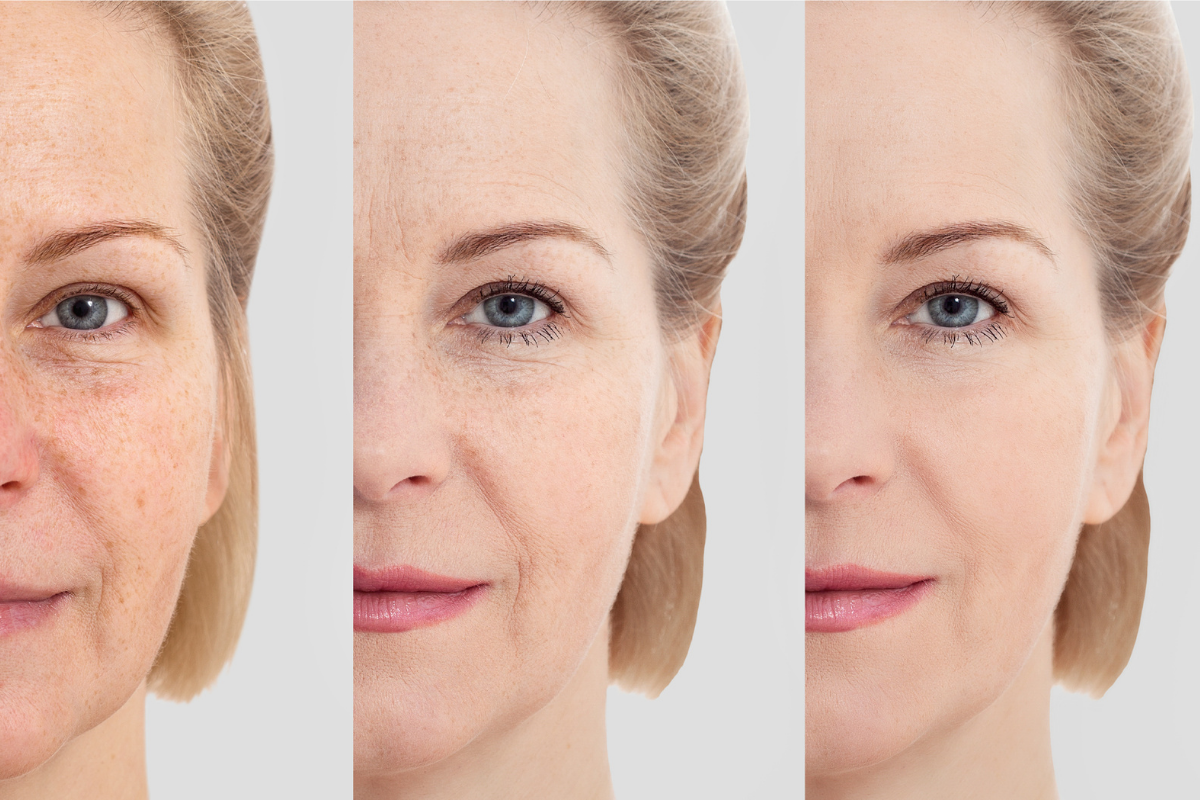 woman face anti-aging