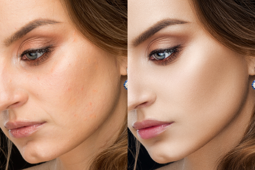 woman face photoshop before after